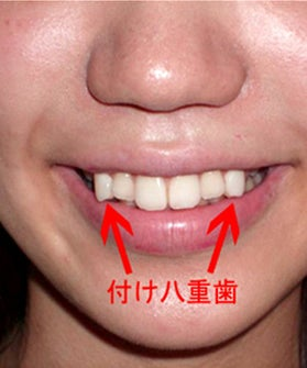 snaggletooth-beauty-trend-main