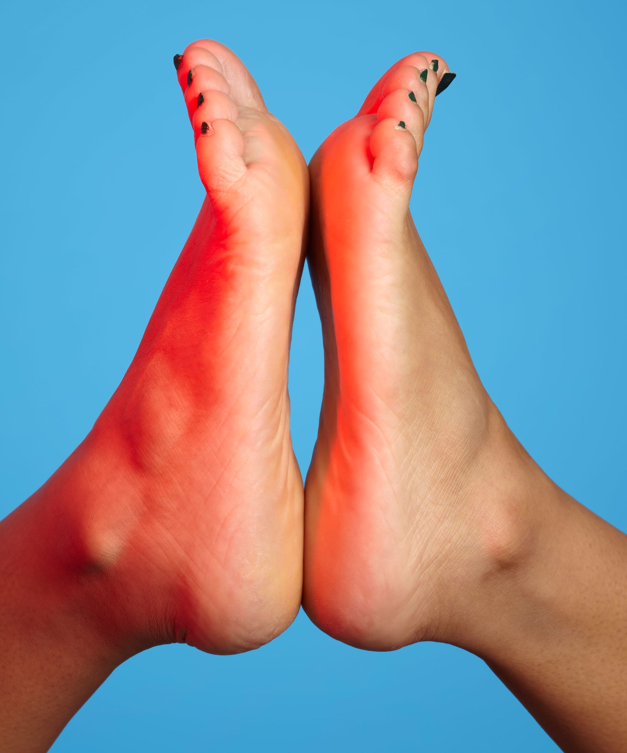 Stinky Feet - Home Remedies | Ameritas