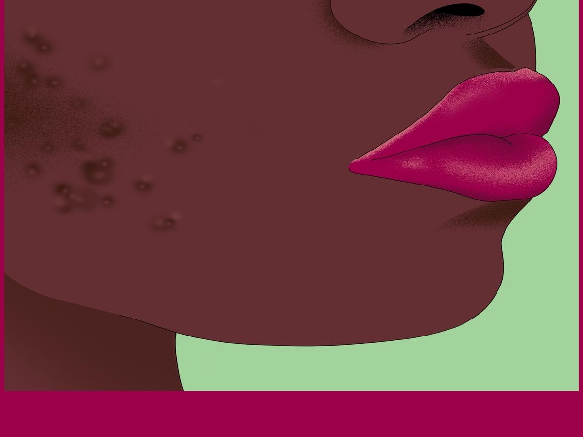 Akne, Sonne, Melasma: Wie es zu Pigmentflecken kommt & wie du sie loswirst