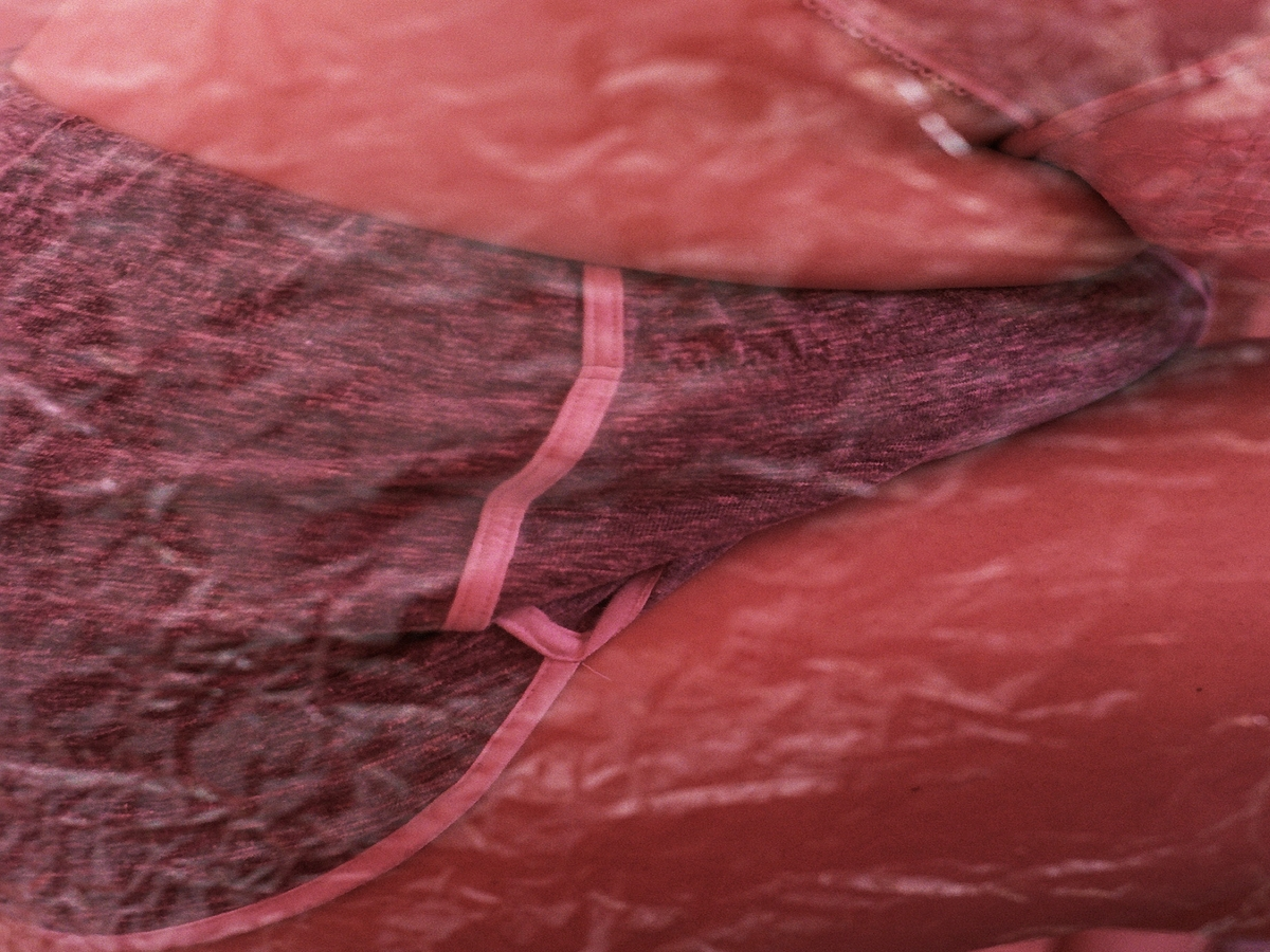 Adenomyose: Die kaum bekannte Krankheit, die jede 10. Frau betrifft