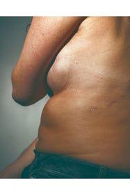 Brustkrebs und Abtreibung