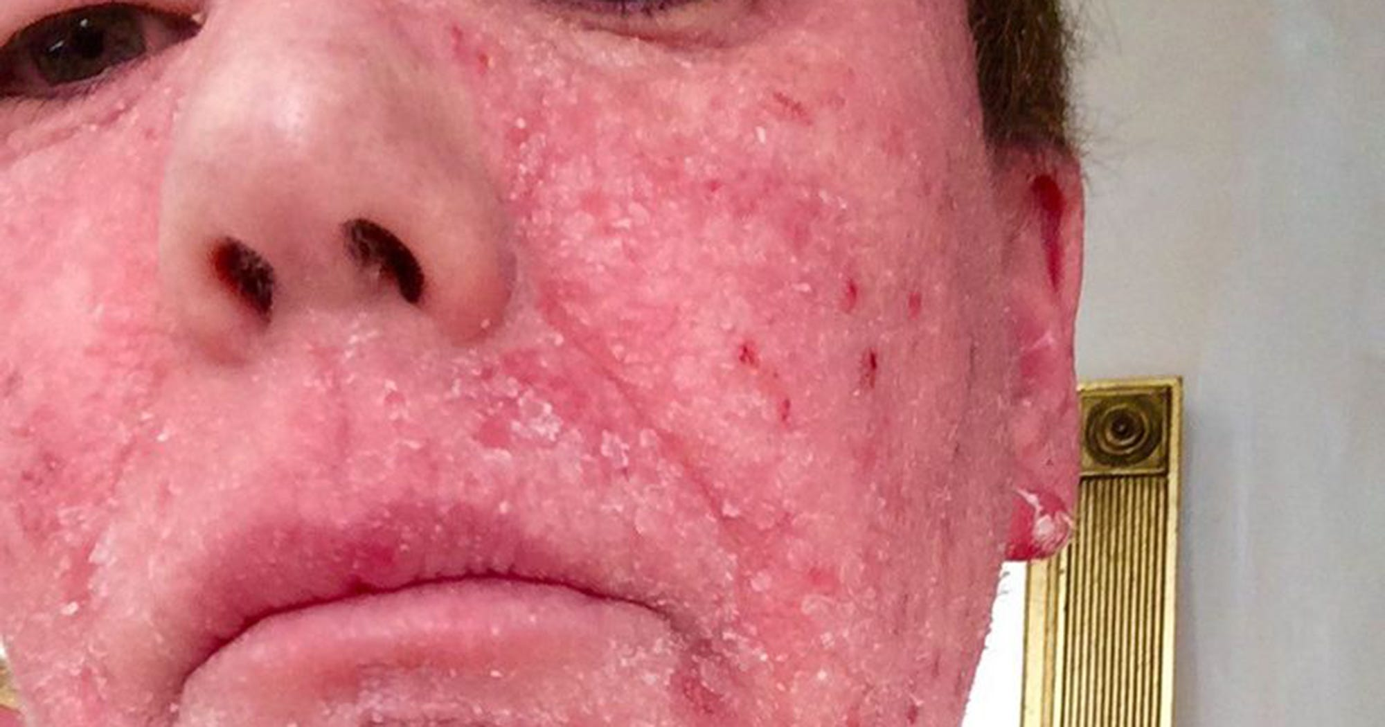 Using Topical Cortisone to Treat Eczema
