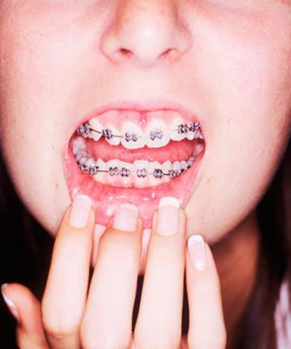 Diy braces trend risks and dangers why this diy braces trend is so dangerous solutioingenieria Image collections