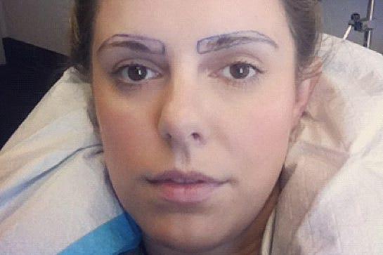 Eyebrow Transplants - Brow Restoration Surgery