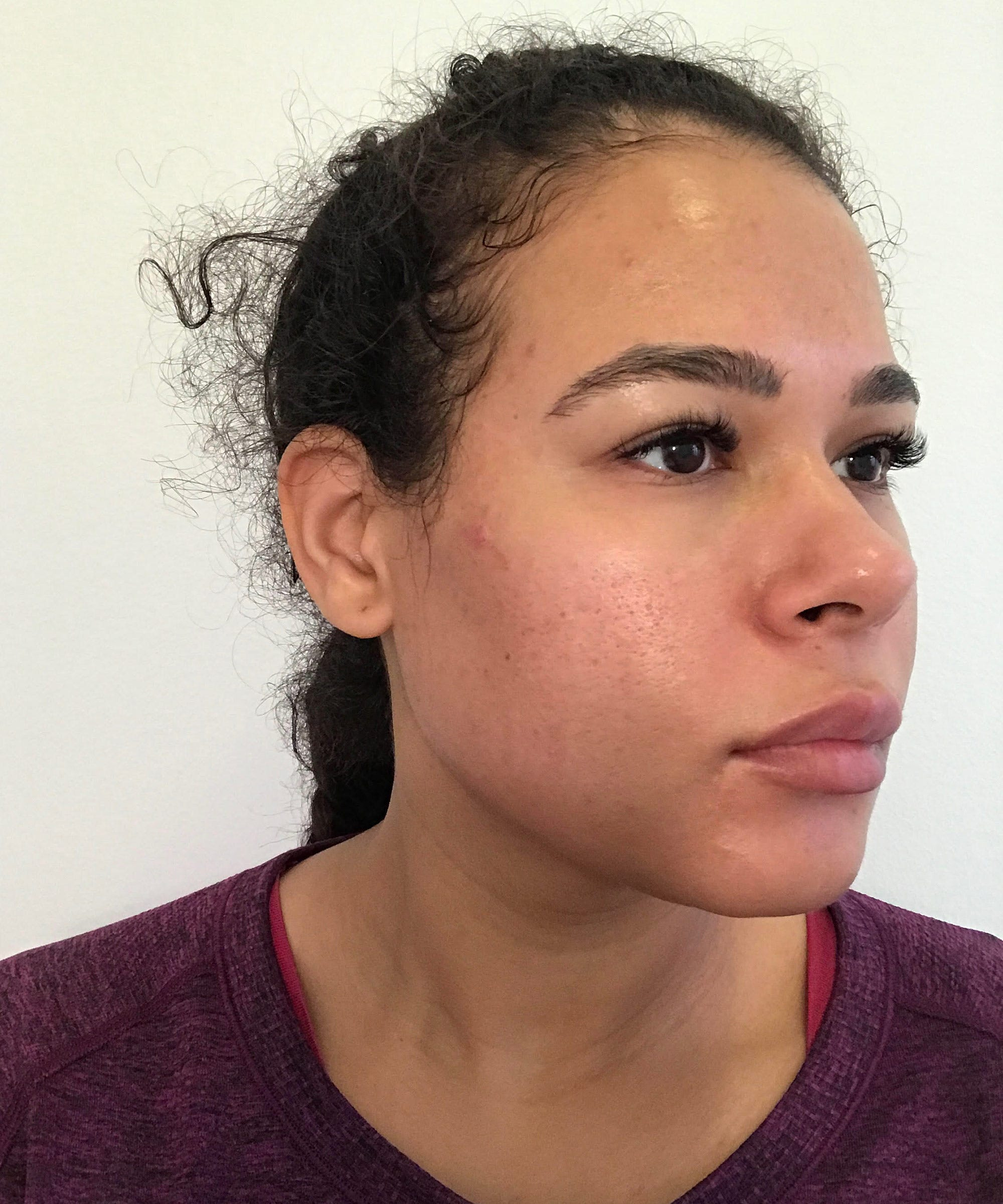918a06d11d6 How 30 Days Of No Alcohol Helped My Skin Problems