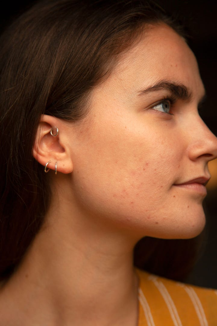 Side Profile Of Woman With Spots