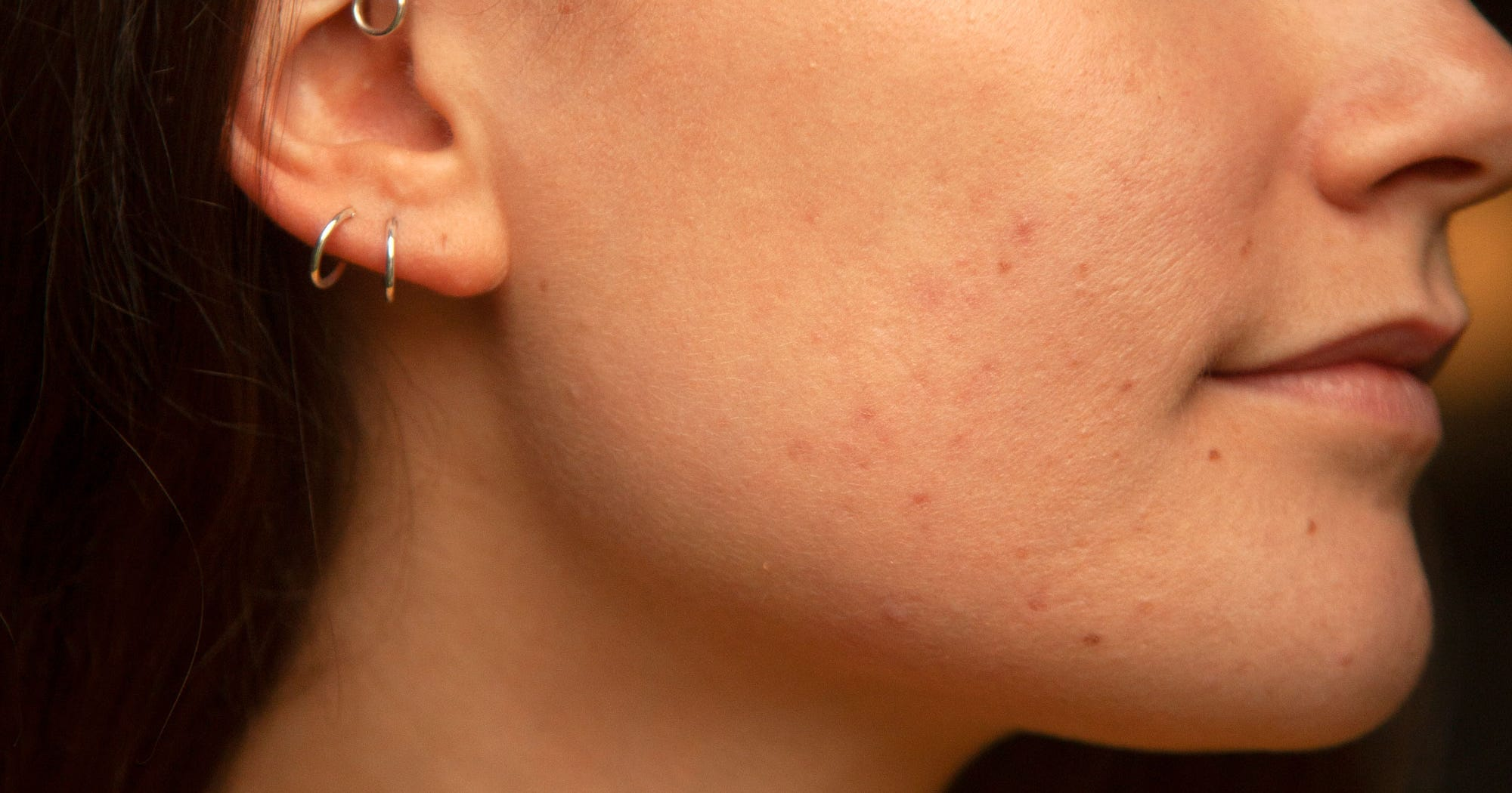 Mighty Patch Acne Stickers Made Our Breakouts Vanish