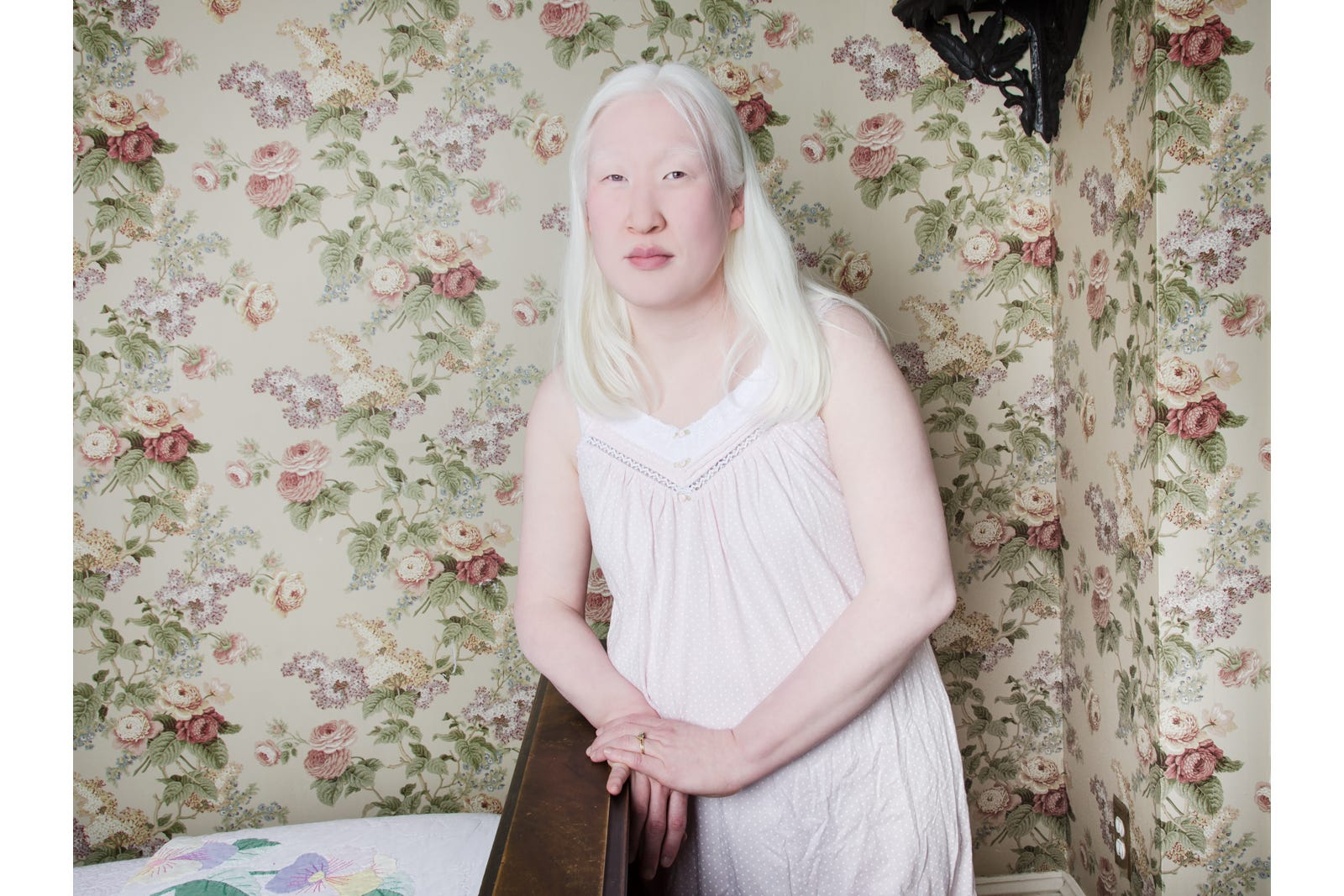 Images - Albino girl has sex