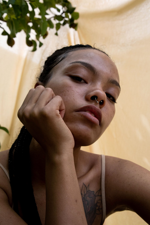 Melasma Treatment – Best Creams Dermatologist Tips