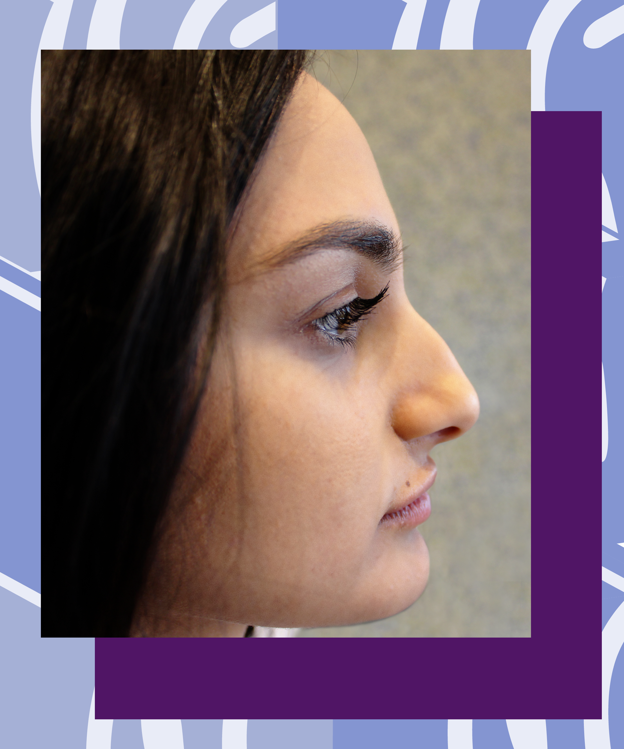 Face Fillers Temporary Nose Job Before After Photos