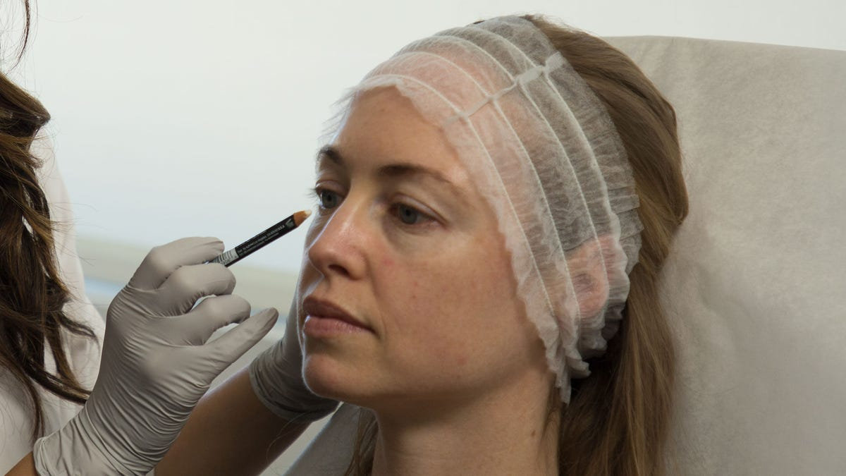 Tear Trough Filler For Bags Under Eyes: What To Know