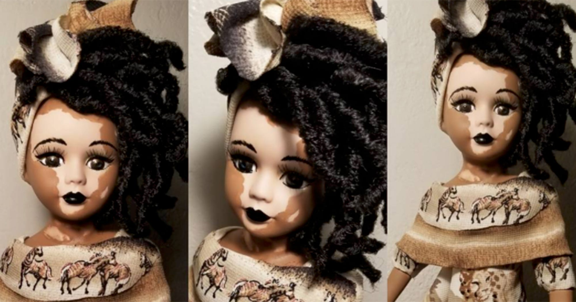 Vitiligo Dolls - Inclusivity