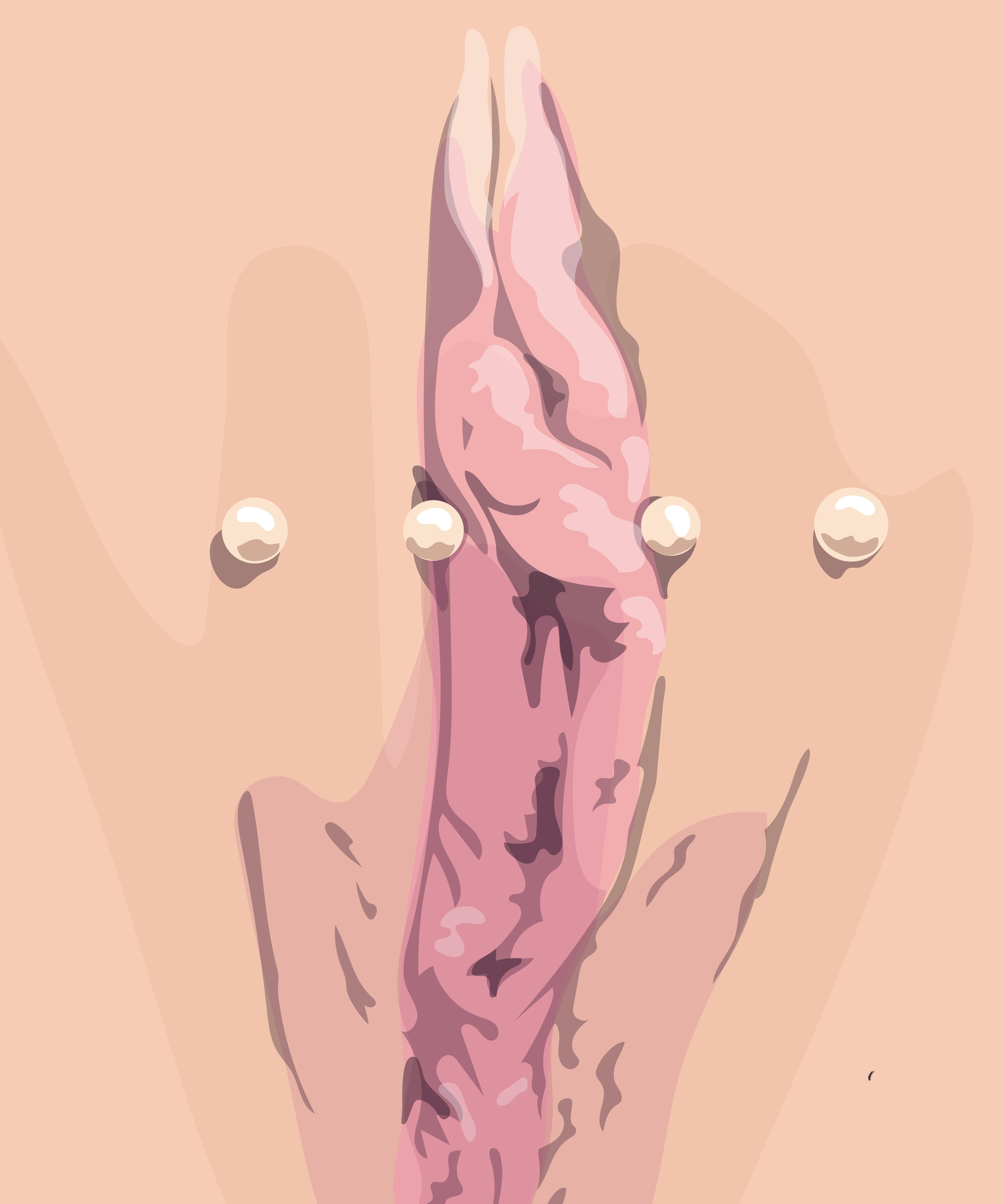 Vulva piercing