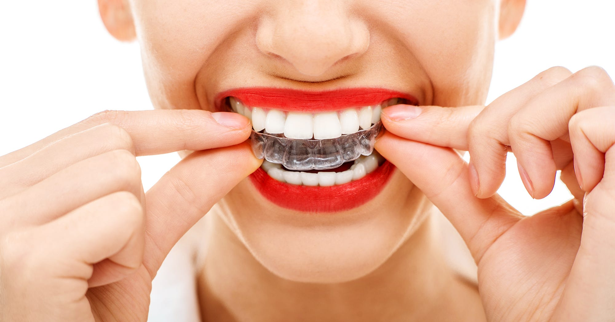 How Long To Wear Retainers After Braces Straight Teeth