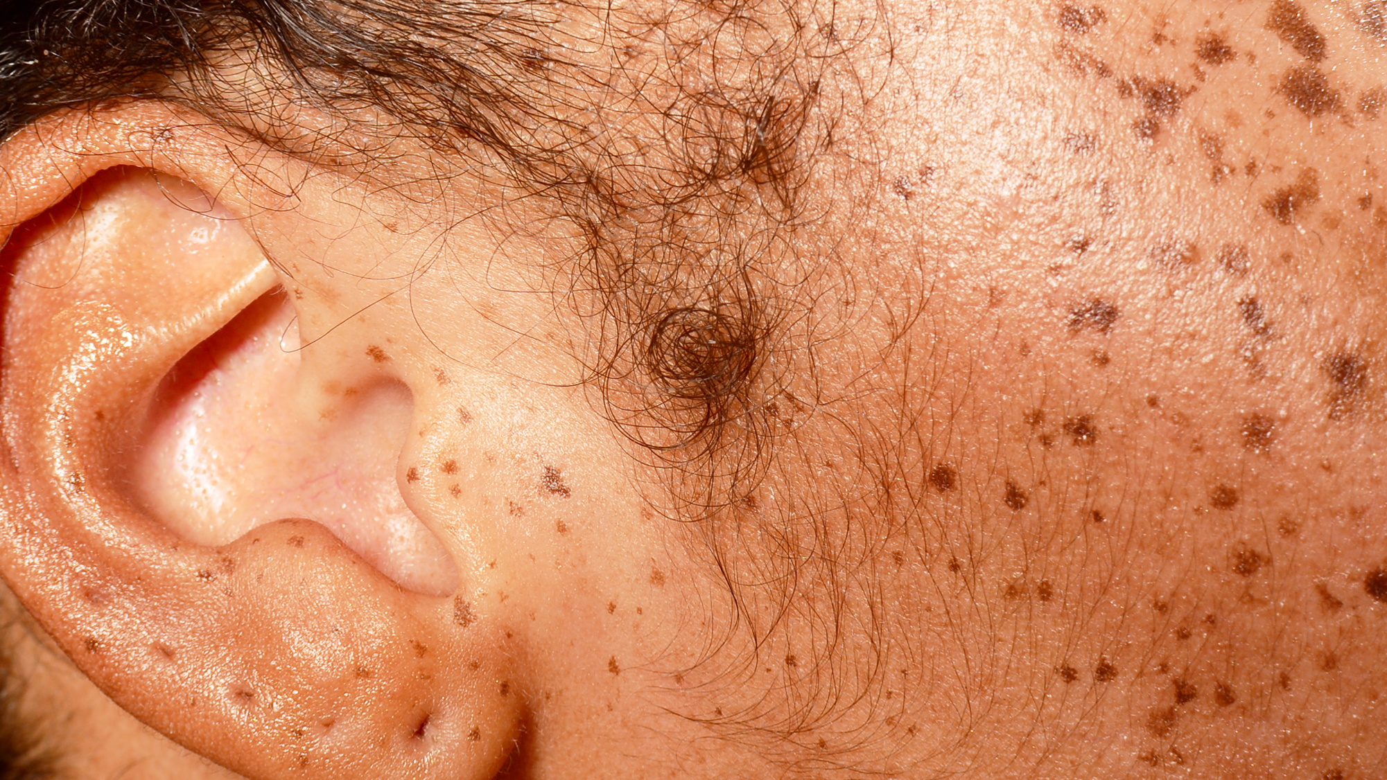 We Have Questions About This Ear Blackhead Removal Video