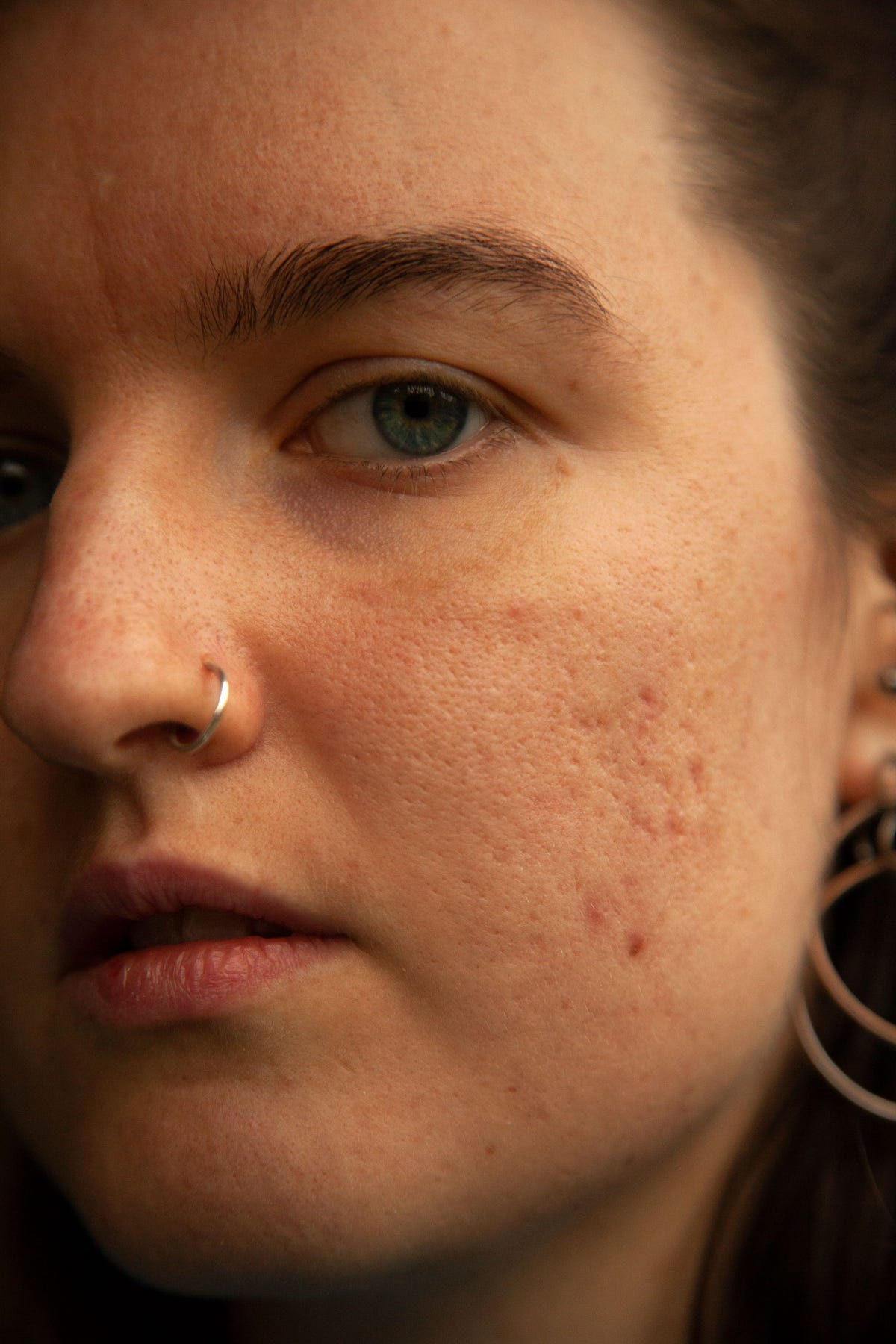 How To Get Rid Of Hormonal Acne - Causes, Treatment