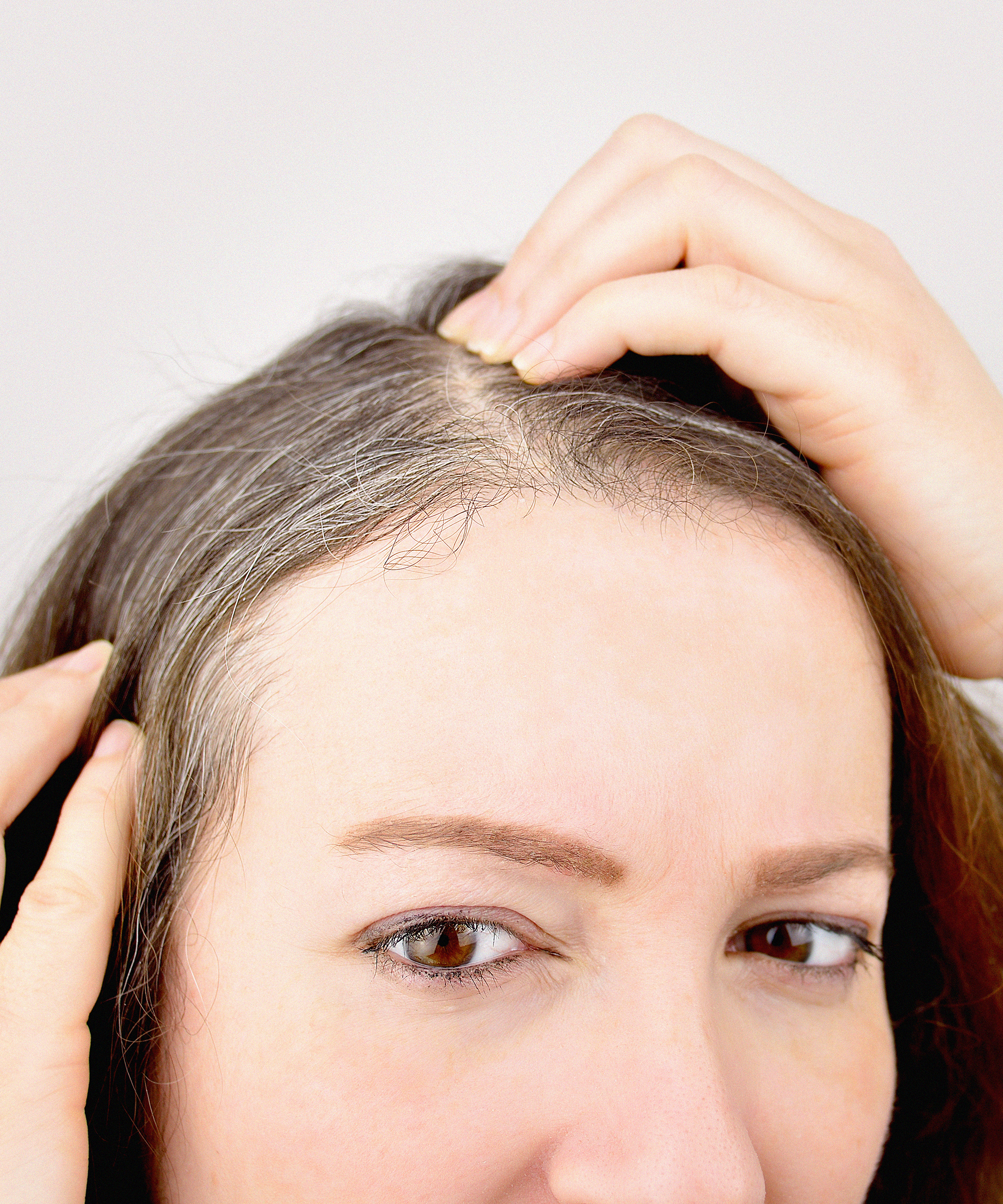What Causes Premature Gray Hair At Young Age Reasons
