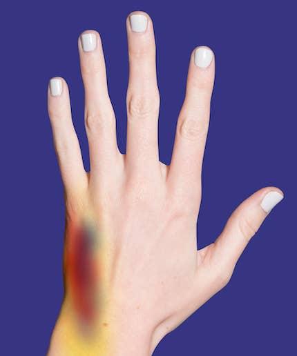 Hand flecken an der Über Nacht