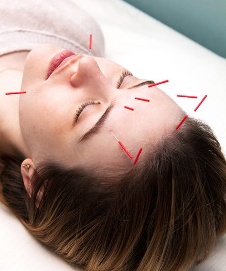 Facial Acupuncture - Natural Anti Aging