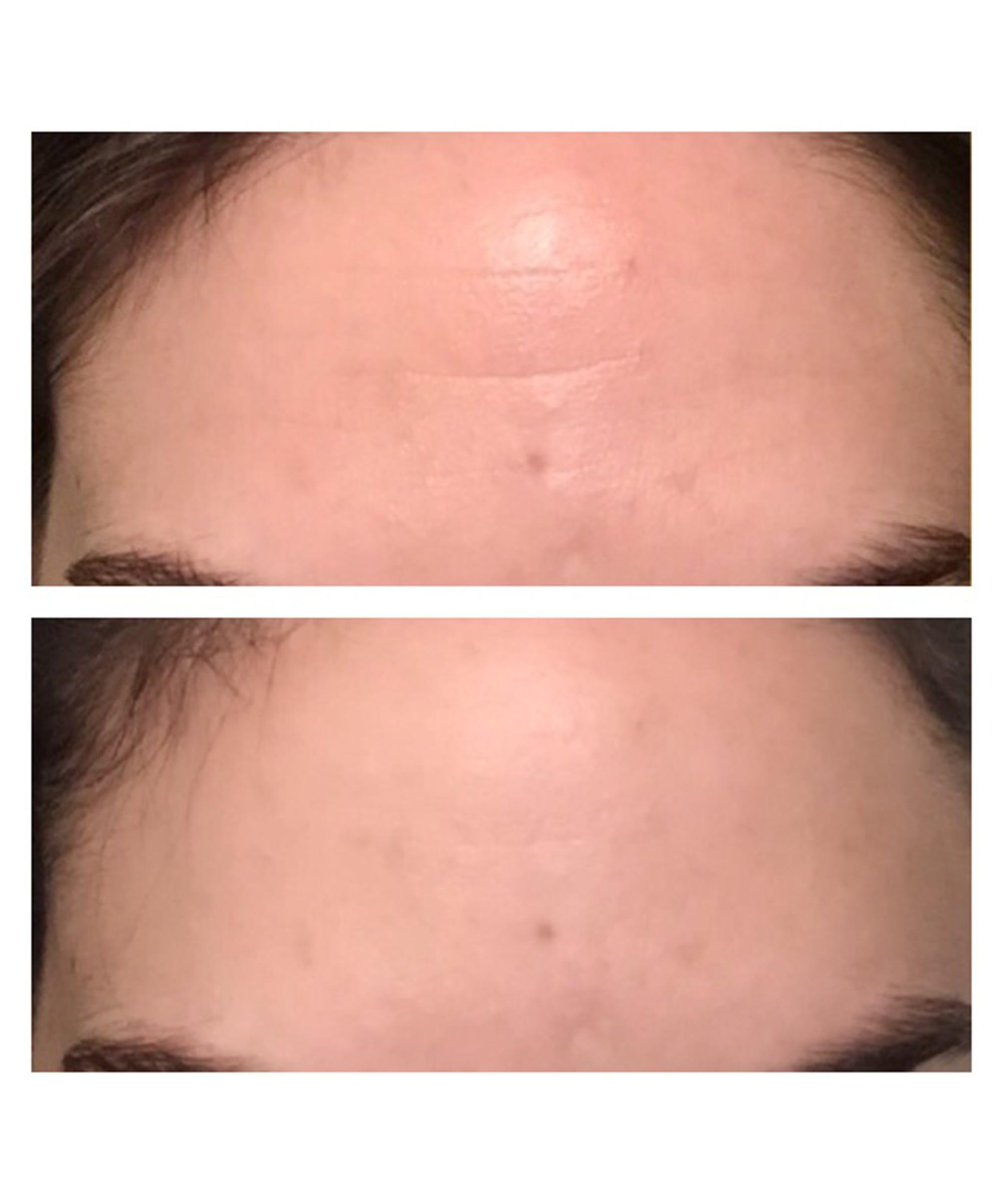 Wrinkles Schminkles Forehead Lines Reduction Kit Review