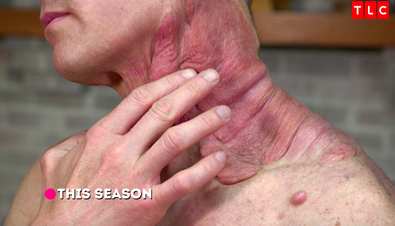 Dr Pimple Popper Season 2 Episode 2 Recap: Cyst & Tumor