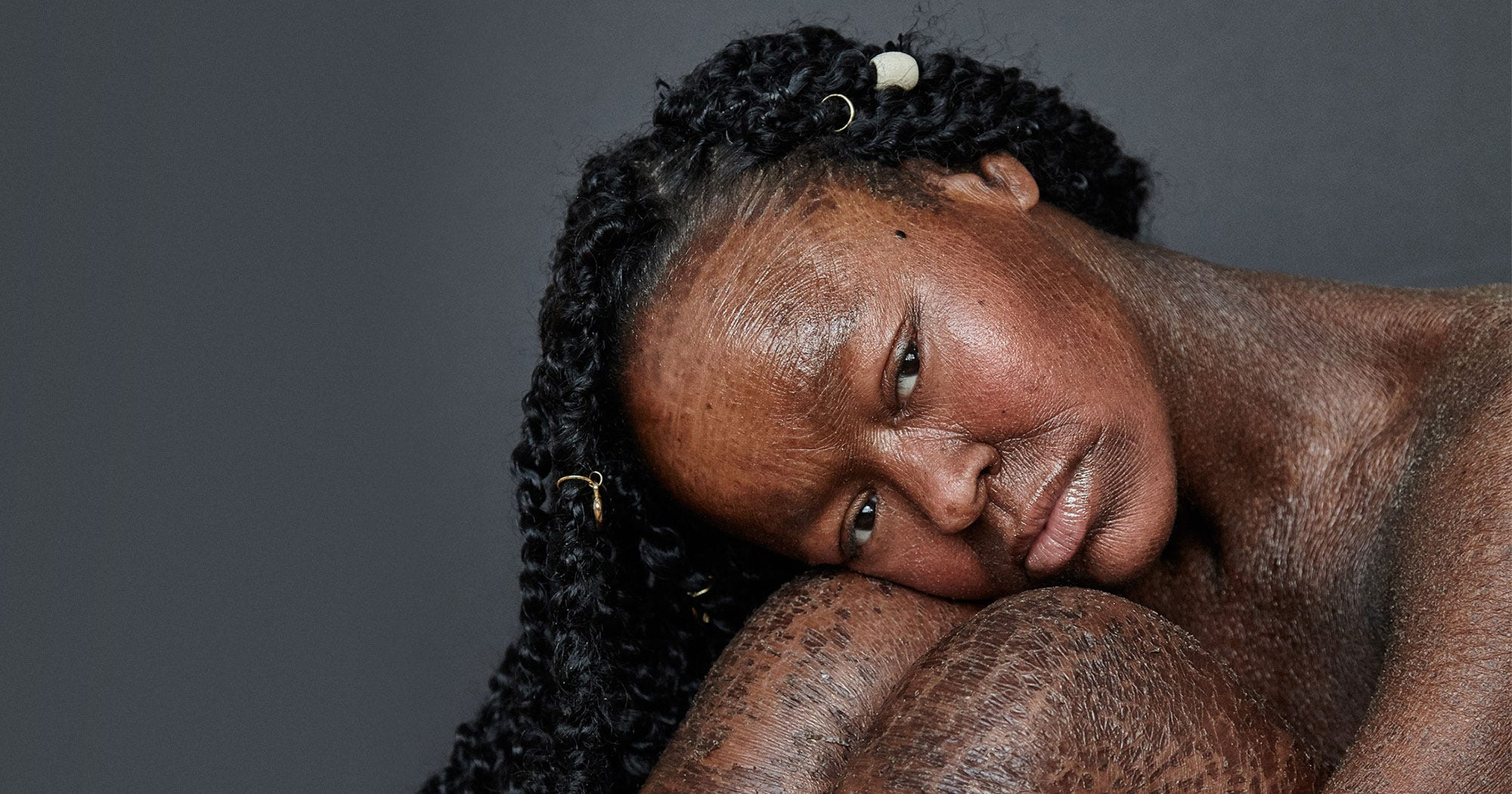 I Never Saw Models With My Skin Condition, So I Became One